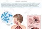 tuberculosis-610x594
