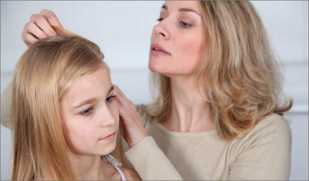 treating_head_lice