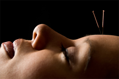 acupuncture-head