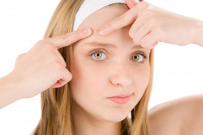 teanger blond acne