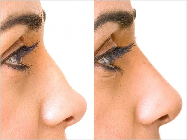 -nose-reshaping-before-after