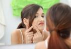 pimples-630x419