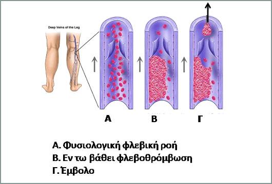 flevothromvosi1