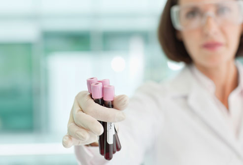 getty_rf_photo_of_lab_tech_with_blood_samples