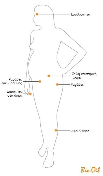 Bio-Oil & Εγκυμοσύνη