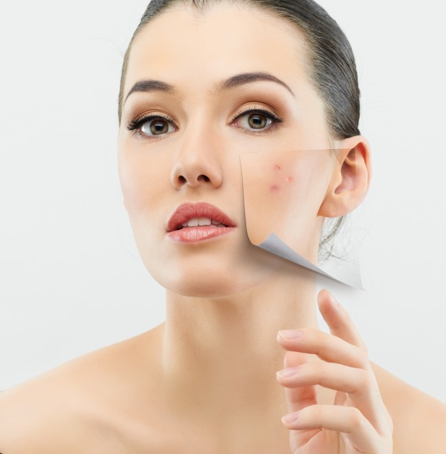 woman-with-acne