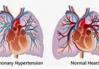 pulmonary_hypertension
