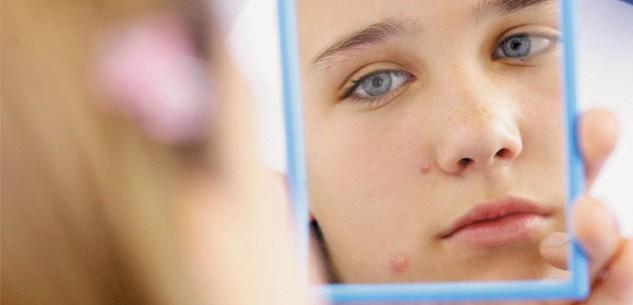 acne-mirror