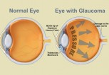 glaucoma_962866162