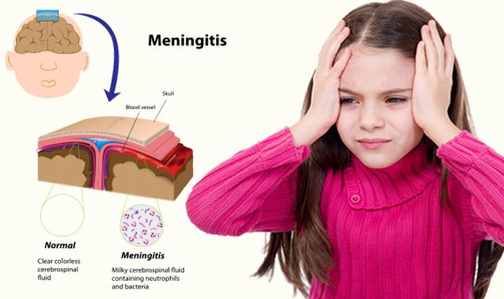 Meningitis-In-Children1