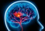 εγκεφαλικό και τρόπος ζωής