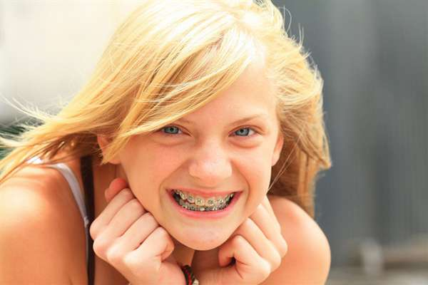 boise-dental-advice-for-kids
