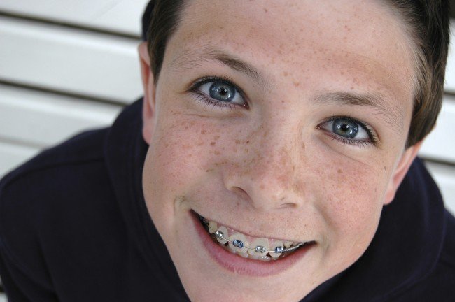 -Orthodontics-Orem-Utah-Boy-Patient2