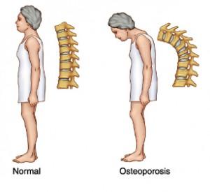 osteoporosis-in-women-300x275