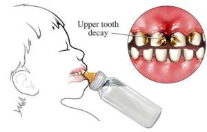 upper-tooth-decay