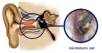 swimmers-ear-combo