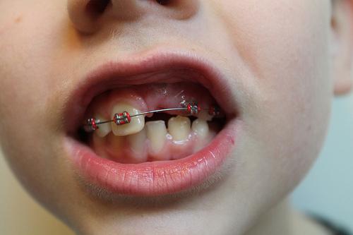 Σιδεράκια στα δόντια τους χρειάζονται να βάλουν έξι στα δέκα παιδιά