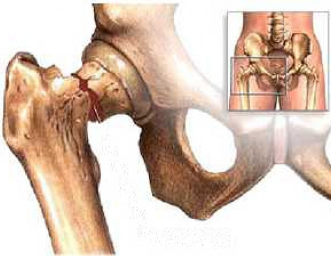 Bone-Density-3