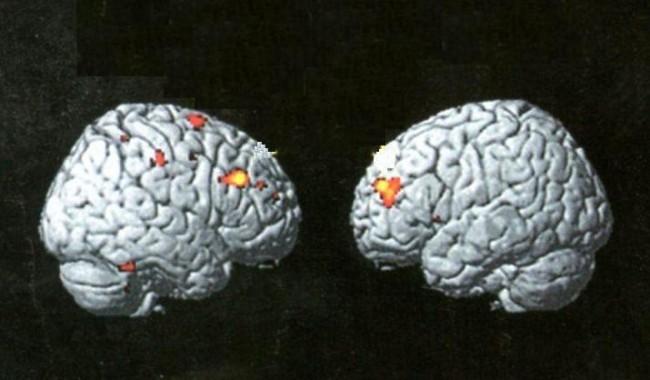 Εγκέφαλοι2