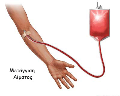 the_blood_transfusion_copy