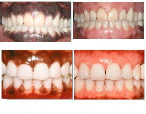 Actual-patients-after-gum-bleaching-treatment