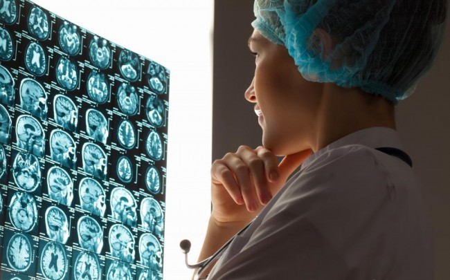 doctor-looking-at-brain-scans