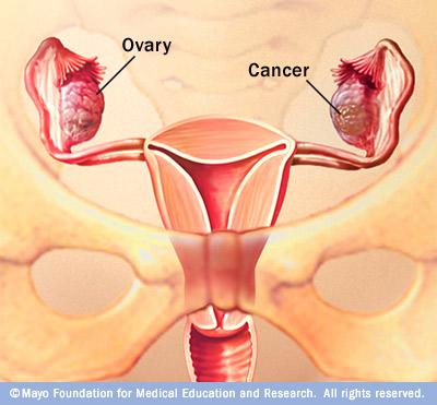 ovarian_cancer