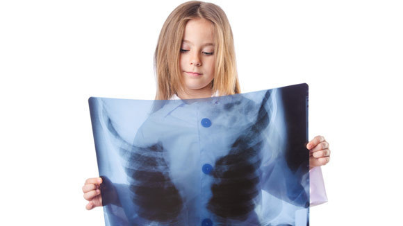 04a04c104321428cba518025162e952c_kids-and-x-ray-safety-580x326_featuredImage