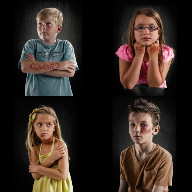 Ο φωτογράφος Rich Johnson προσπάθησε να αποτυπώσει αυτά τα σημάδια στο σώμα των παιδιών και να τα κάνει ορατά σε όλους μας.
