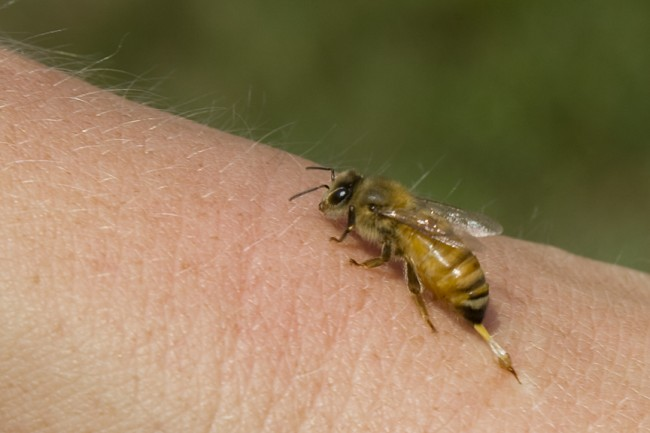 bee-sting-2