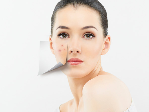 adult-acne1