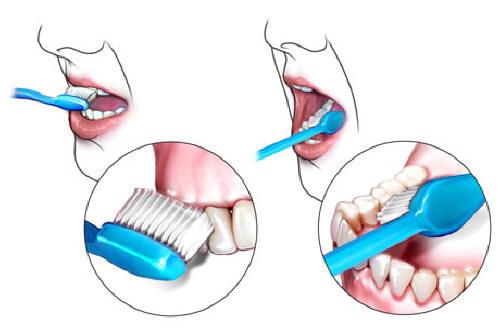 brushteeth1