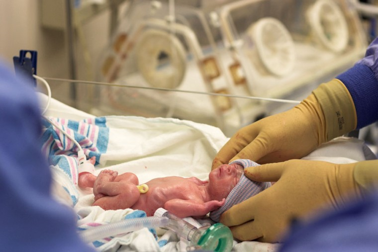 Απίστευτο! Μωρό «ξύπνησε» ύστερα από 15 ώρες στο νεκροτομείο και άρχισε να κλαίει