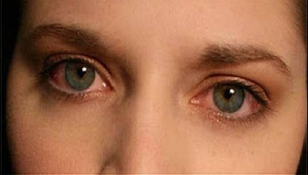 Σύνδρομο Sjogren: 'Ενα χρόνιο συστηματικό αυτοάνοσο νόσημα που προσβάλλει όλο το σώμα