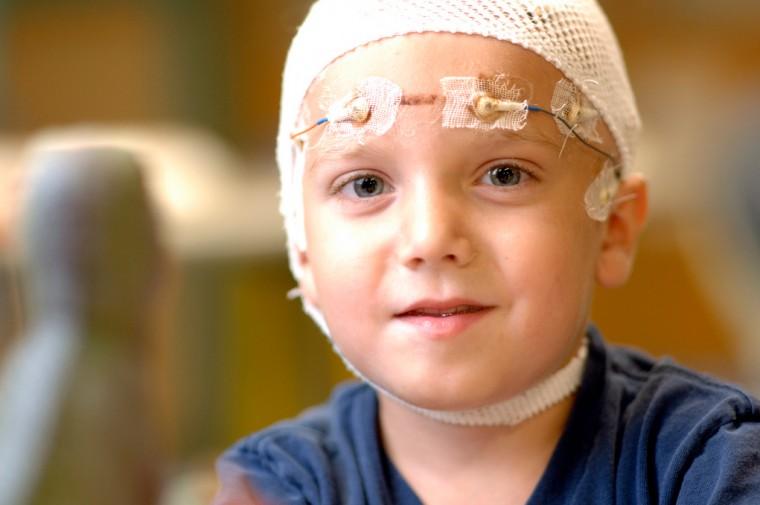 Η ρευματοειδής αρθρίτιδα «ενοχοποιείται» για την γέννηση παιδιών με επιληψία