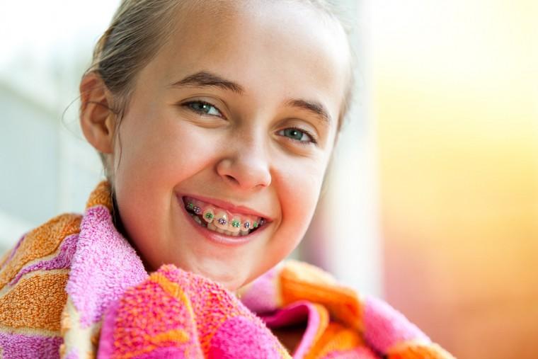 5 συμβουλές για να διατηρούν τα παιδιά καθαρά τα σιδεράκια τους