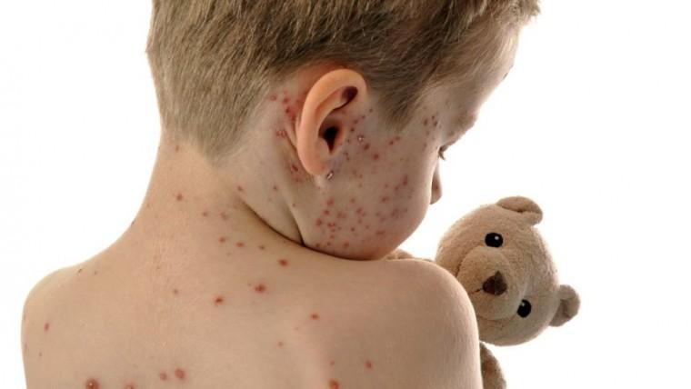 """Το αντιεμβολιαστικό κίνημα """"ξαναέφερε"""" την ιλαρά στην Ελλάδα – 8 κρούσματα καταγράφηκαν μέχρι σήμερα"""