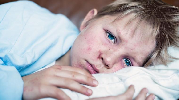 «Το «κουτσουρεμένο» πρόγραμμα εμβολιασμών είναι εξίσου επικίνδυνο με τον μη εμβολιασμό»: Ο παιδίατρος προειδοποιεί