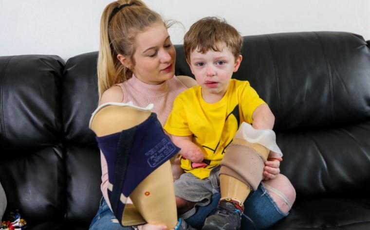 Μηνιγγίτιδα τύπου Β: Η ασθένεια που «κλέβει» τα μέλη των παιδιών