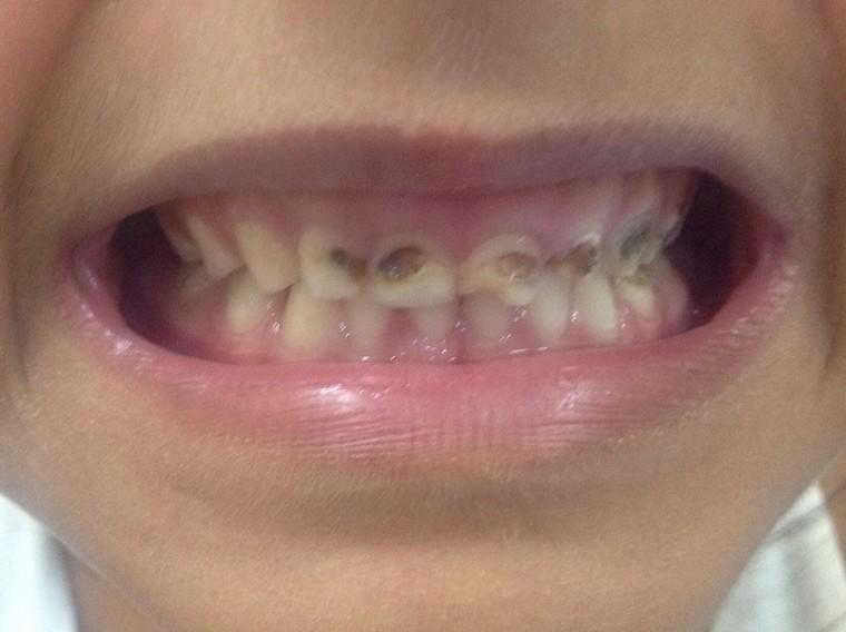 Έκκληση για βοήθεια: Η μικρή Μαρία έχει χαλασμένα δόντια λόγω φτώχειας – Δείτε πώς μπορούμε να βοηθήσουμε