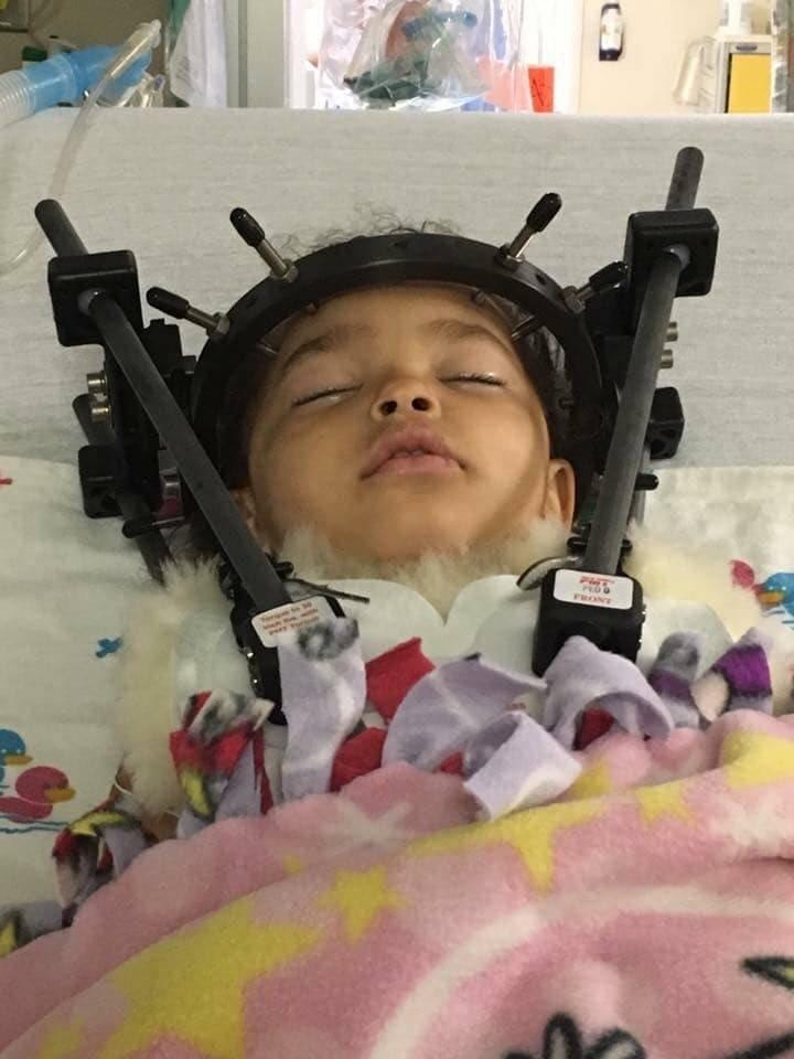 Το τρομακτικό ατύχημα αυτού του 2χρονου κοριτσιού πρέπει να μας αφυπνίσει ως προς τη χρήση του παιδικού καθίσματος