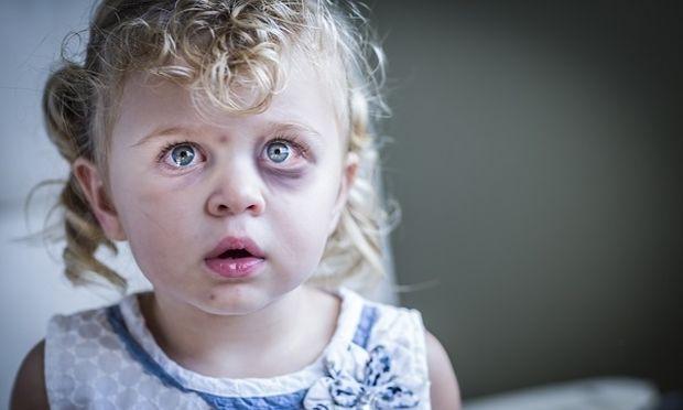 Παιδική κακοποίηση: Ένα φαινόμενο σε έξαρση – 2 στα 10 παιδιά θύματα