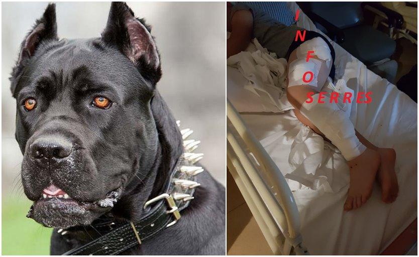 Σέρρες: Σοκάρουν οι εικόνες του 9χρονου που δαγκώθηκε από σκύλους