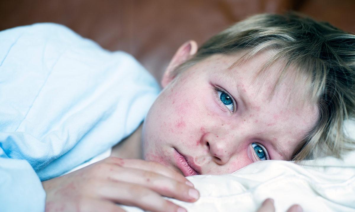 Ιλαρά: Ο άγνωστος κινδύνος που διατρέχουν όσα παιδιά νοσήσουν