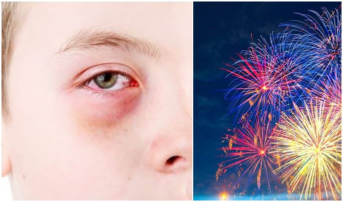 170.000 ευρώ αποζημίωση στον 11χρονο που έχασε το μάτι του από τα πυροτεχνήματα στο Πατρινό Καρναβάλι