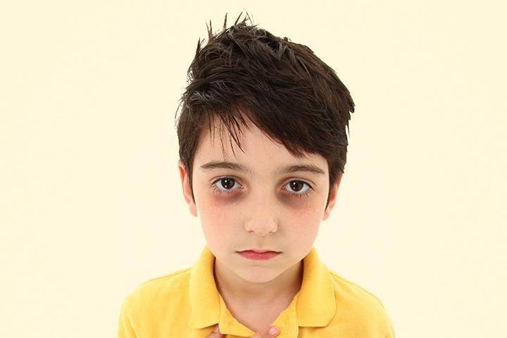 Παιδίατρος: Αν το παιδί σου έχει μαύρους κύκλους στα μάτια, δώσε προσοχή σε αυτές τις αιτίες