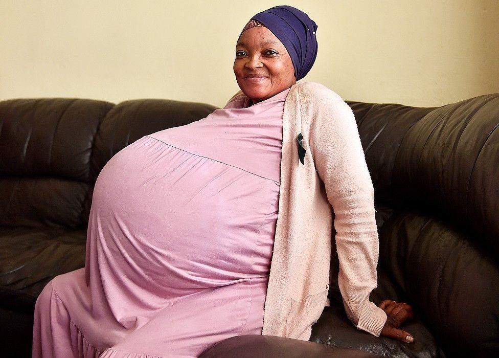 Απίστευτο κι όμως αληθινό: Γυναίκα από το Μάλι γέννησε… 10δυμα – Ο υπέρηχος έδειχνε μόνο τα 8!