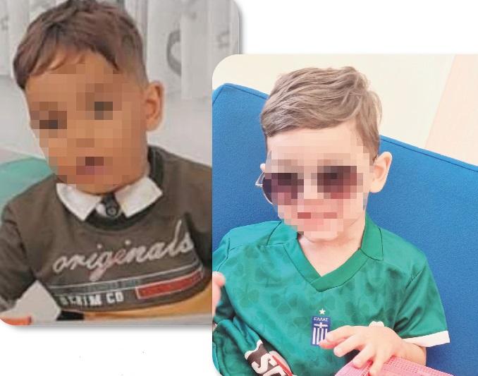 3χρονος υπεβλήθη επιτυχώς σε επέμβαση υπογλωττιδικής στένωσης τραχείας σε ελληνικό νοσοκομείο