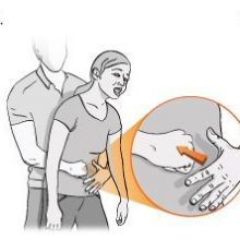 Σκιάθος: Δόκιμος αστυφύλακας έσωσε ανήλικη που υπέστη πνιγμονή - Η σωτήρια λαβή