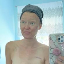 """""""Στα 35 μου διαγνώστηκα με καρκίνο μαστού και θέλω να θυμίζω σε όλους τι έφταιξε"""": Μαμά 4 παιδιών εξομολογείται"""